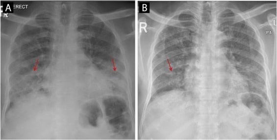 Post-COVID19 fibrózis, a SARS-CoV-2-fertőzés gyakori szövődménye