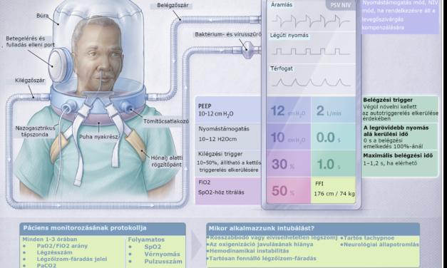 A sisakos noninvazív lélegeztetés és az orrszondán keresztül adott nagy áramlású oxigén hatása a légzéstámogatástól mentes napok számára középsúlyos vagy súlyos hipoxémiás légzési elégtelen COVID19-ben szenvedő betegeknél